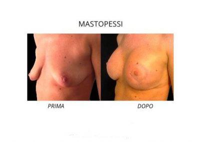 Mastopessi - lifting del seno