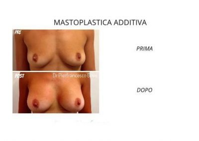 Intervento di Mastoplastica Additiva