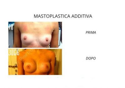 Intervento Mastoplastica Additiva