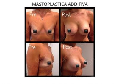Mastoplastica Additiva Salerno